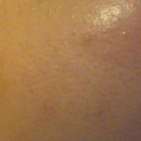 Gecombineerde huid