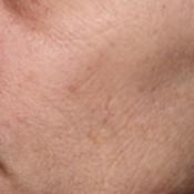 Rijpere huid