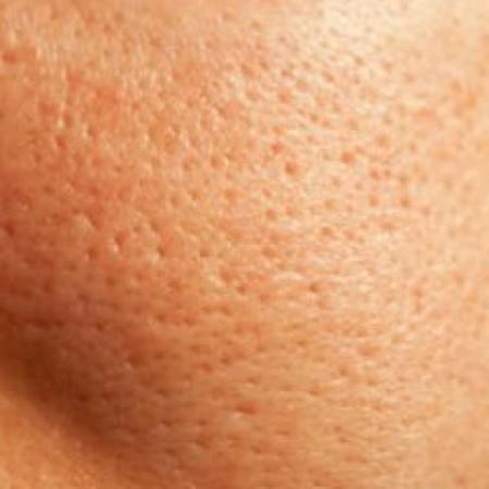 Vette huid